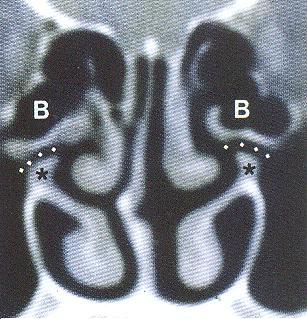Αξονική τομογραφία ηθμοειδούς χώνης (infutimbulum ethmoidale), Δρ Δημήτριος Ν. Γκέλης,Ωτορινολαρυγγολόγος