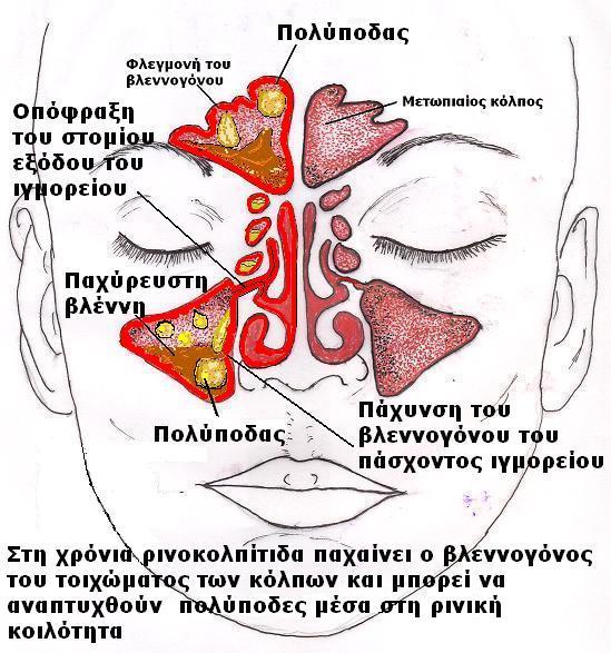 Χρονία ρινοκολπίτιδα. Δρ Δημήτριος Ν. Γκέλης Ωτορινολαρυγγολόγος