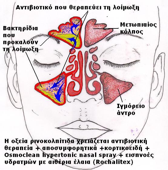Θεραπεία οξείας ρινοκολπίτιδας. Δρ Δημήτριος Ν. Γκέλης, Ωτορινολαρυγγολόγος