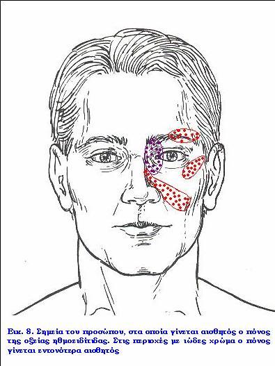 Οξεία ηθμοειδίτιδα. Δρ Δημήτριος Ν. Γκέλης, Ωτορινολαρυγγολόγος